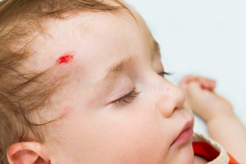 Kleines Baby, das mit einer Wunde auf seinem Kopf schläft stockfotografie