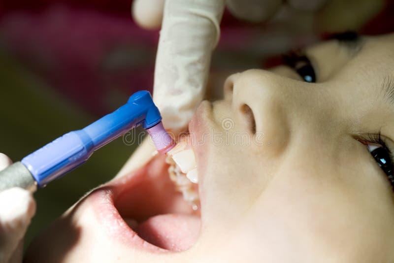 Kleines Mädchen, das die Zähne gesäubert im zahnmedizinischen Büro hat lizenzfreie stockfotos
