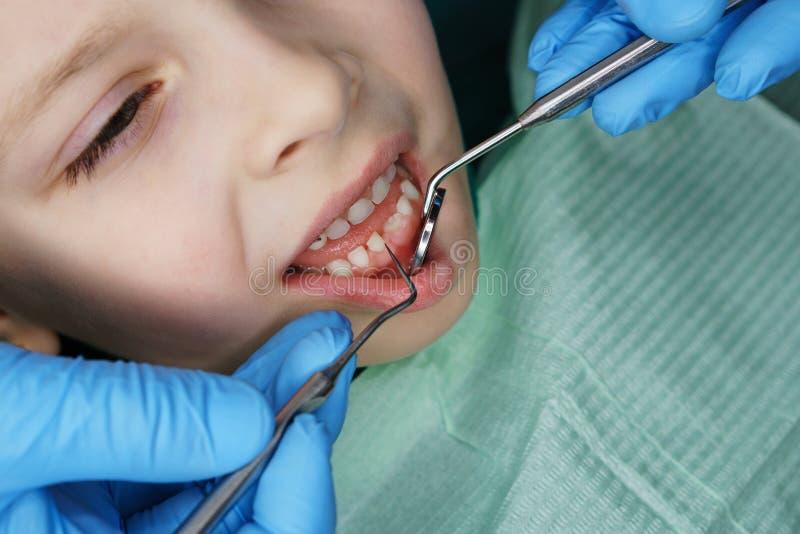 Kleines M?dchen in der zahnmedizinischen Klinik stockbild