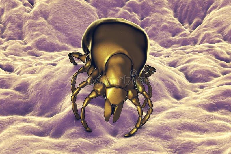 Kleszczowy Ixodes, członkonóg odpowiedzialny dla przekazu bakterii Borrelia burgdorferi royalty ilustracja
