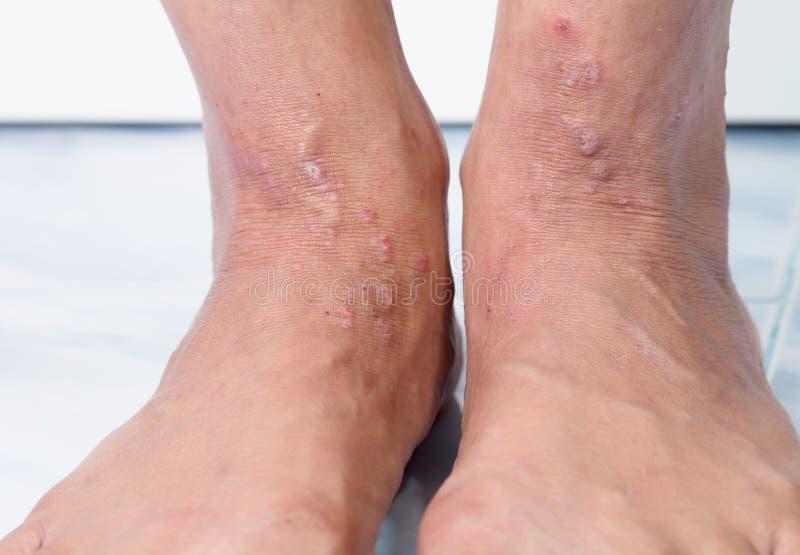 Klia som orsakas av allergier, hudkvinnor royaltyfria bilder