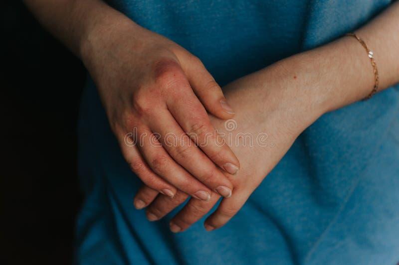 Kliande kvinnahandcloseup Röd allergihud royaltyfria bilder