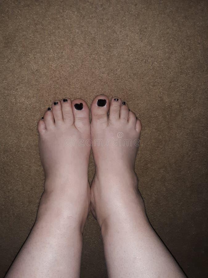 Klumpige Füße mit schwarzem Nagellack stockfotografie