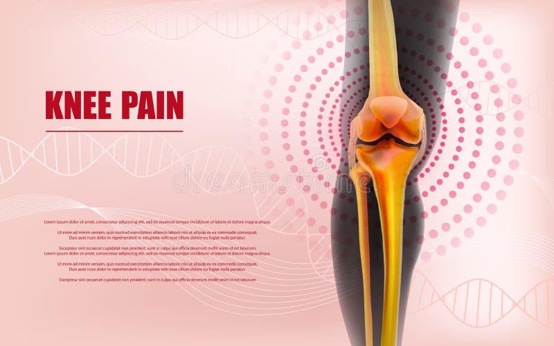 Knäet smärtar lättnad benar ur av knäet stock illustrationer