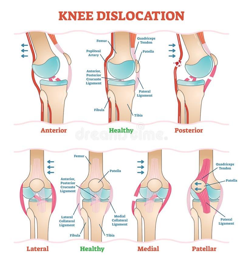 Knäförskjutningar - medicinska vektorillustrationdiagram Anatomisk knäskadatypintrig stock illustrationer