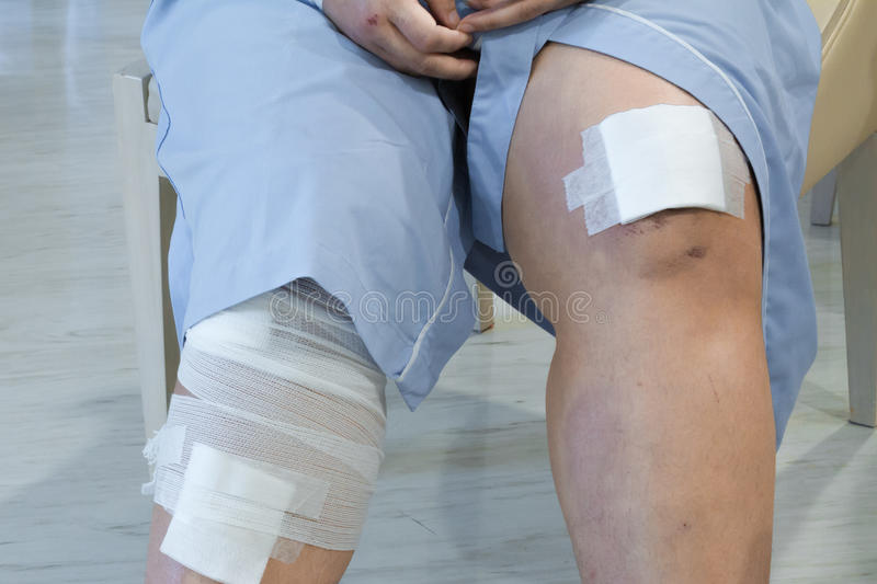 Knee with adhesive and gauze bandage. stock photo