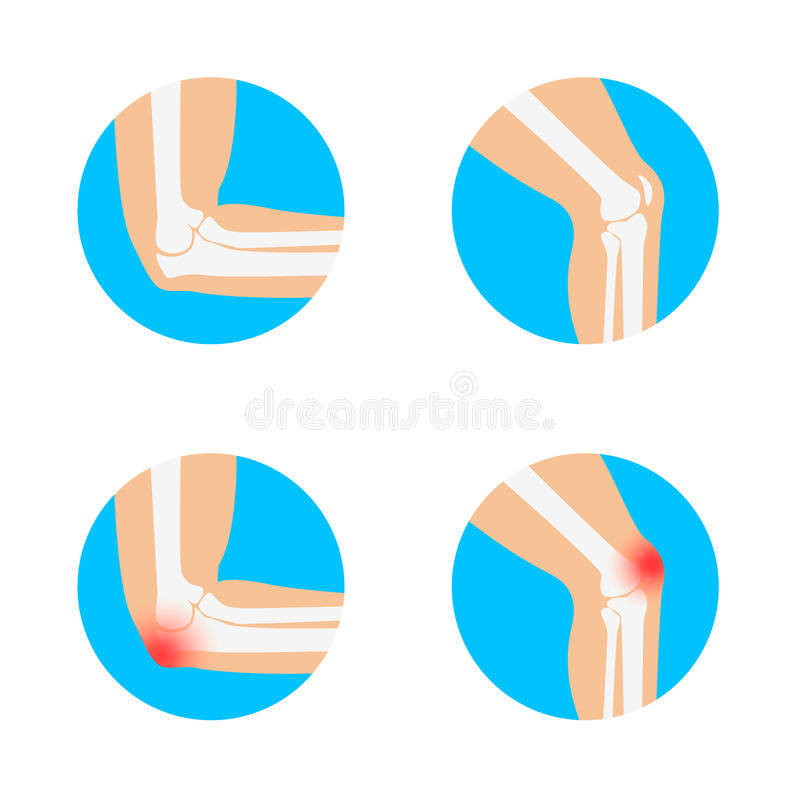 Knee And Elbow Vector Illustration. Stock Vector - Illustration of ...