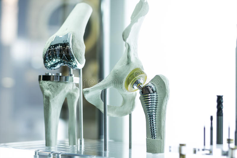 Knee and hip prosthesis for medicine stock photo