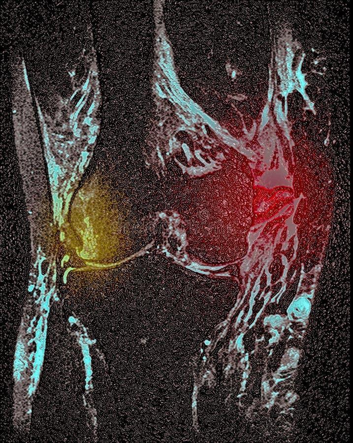 Knee ligament tear, MRI stock images