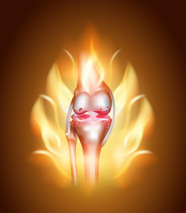 Knee joint pain, burning knee royalty free illustration