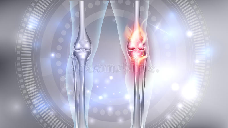 Knee joint problems stock illustration