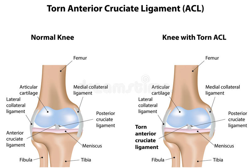 Knee Joint Torn Anterior Cruciate Ligament Stock Vector ...