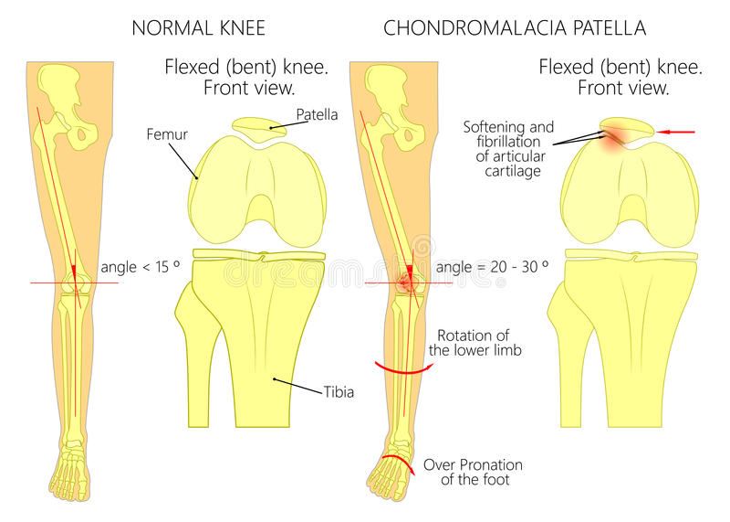 Knee Pain And Chondromalacia Patella Stock Vector Illustration Of
