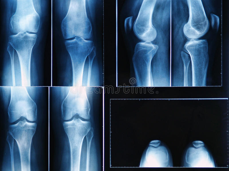Knee x-ray. X-ray film of knee royalty free illustration