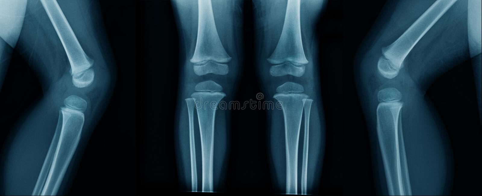 Knee x-ray in blue tone royalty free stock images