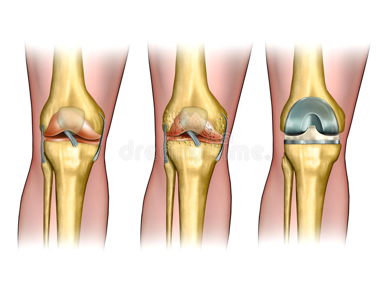Knee replacement. Healthy knee anatomy, degenerative arthritis of the knee and replacement surgery. Digital illustration royalty free illustration