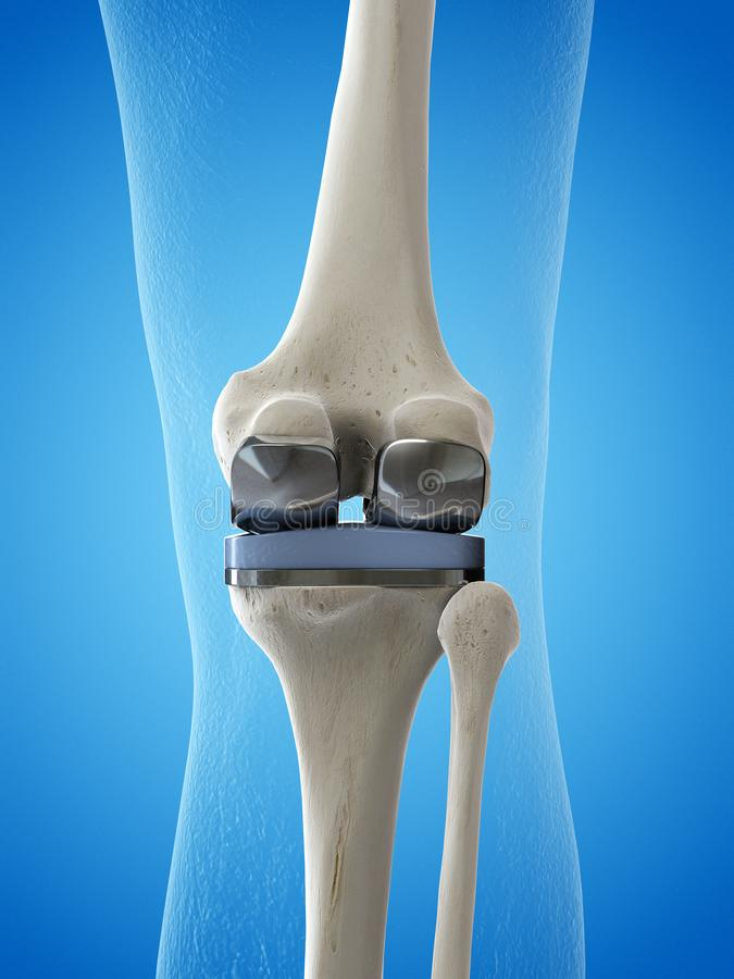 A knee replacement. 3d rendered medically accurate illustration of a knee replacement royalty free illustration