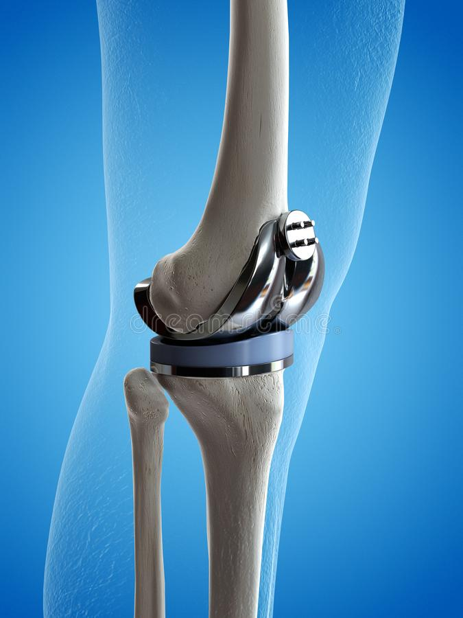 A knee replacement. 3d rendered medically accurate illustration of a knee replacement stock illustration