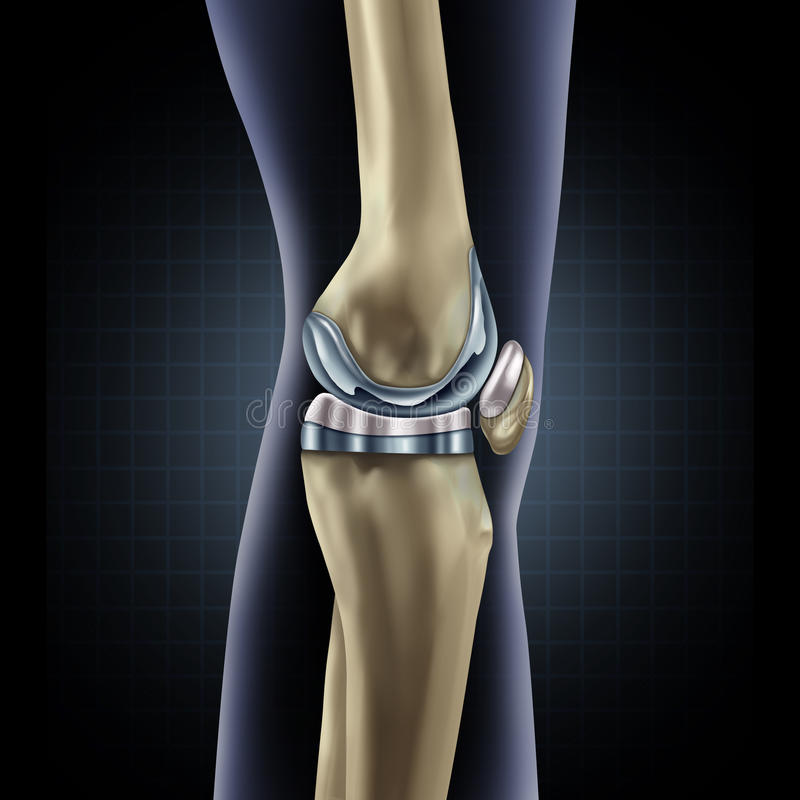 Knee Replacement royalty free illustration