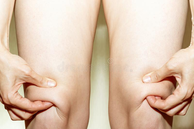 Knee of women worry about fat skin and holdin it by hands on light background royalty free stock photography