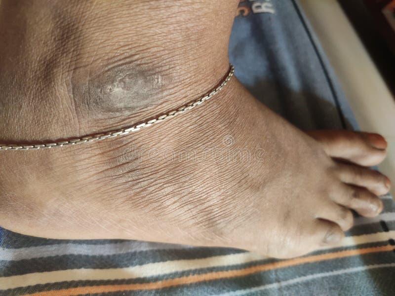 Pin by Jobin on Sent in 2020   Anklets, Insta fashion, Delicate bracelet