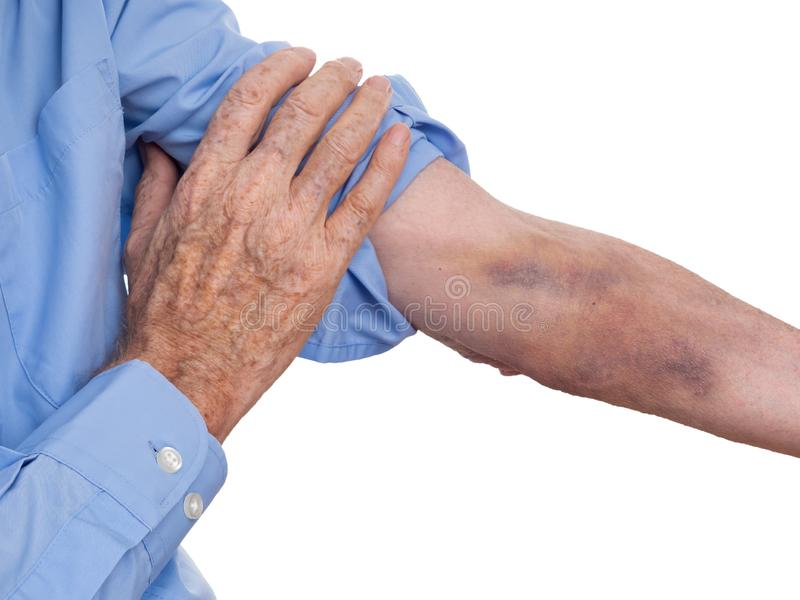 Kneuzend na eenvoudig, bloedonderzoek, blijkbaar vrij gemeenschappelijk in oudere mensen Niet ge?dentificeerde mens ge?soleerd te royalty-vrije stock afbeeldingen