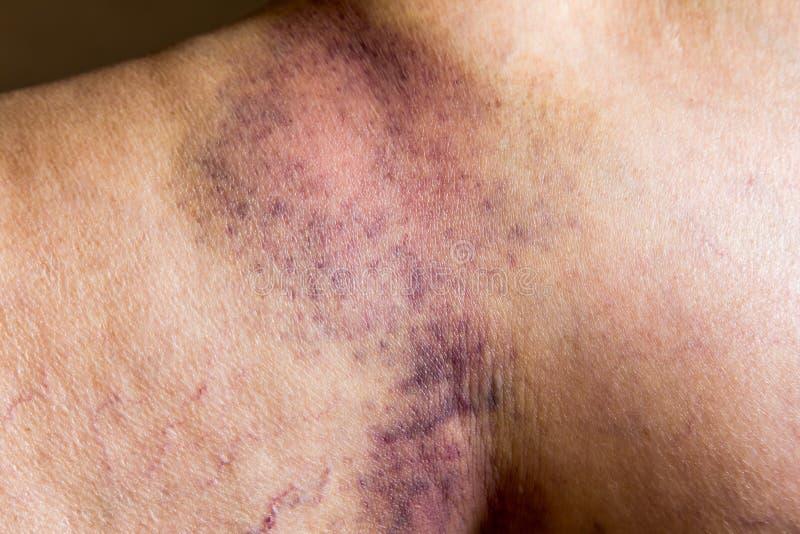 Kneuzing op de gewonde oude huid van het vrouwenbeen stock fotografie