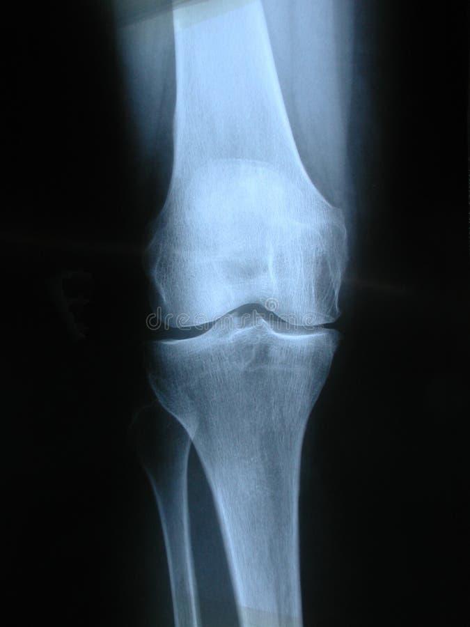 Knie Stock Afbeelding