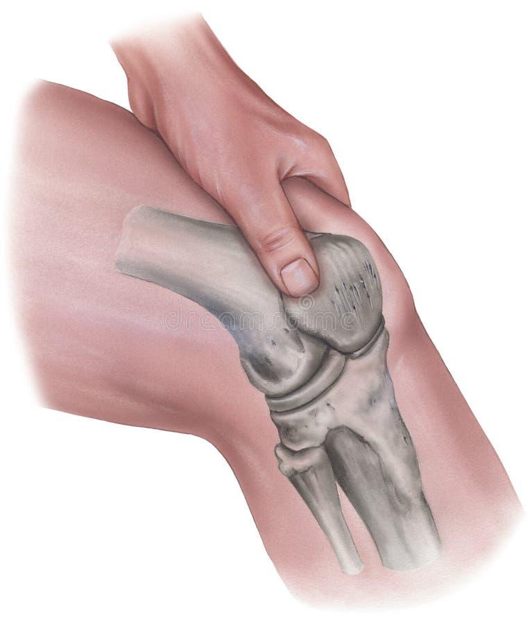 Knie - Handpressen Auf Muskeln U. Knochen Stock Abbildung ...