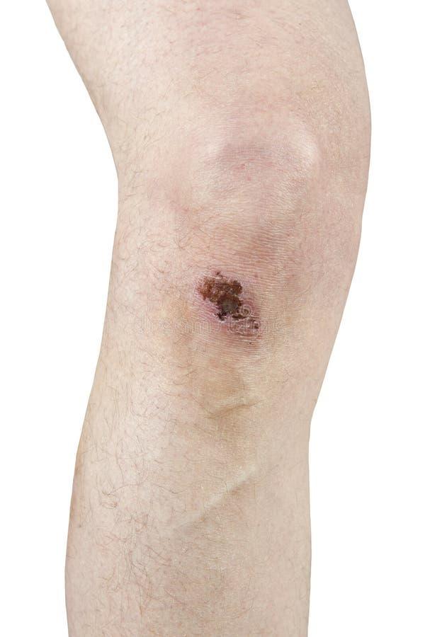 Knie-Kratzen, Kruste, Narbe, Verletzung getrennt auf Weiß stockfotos