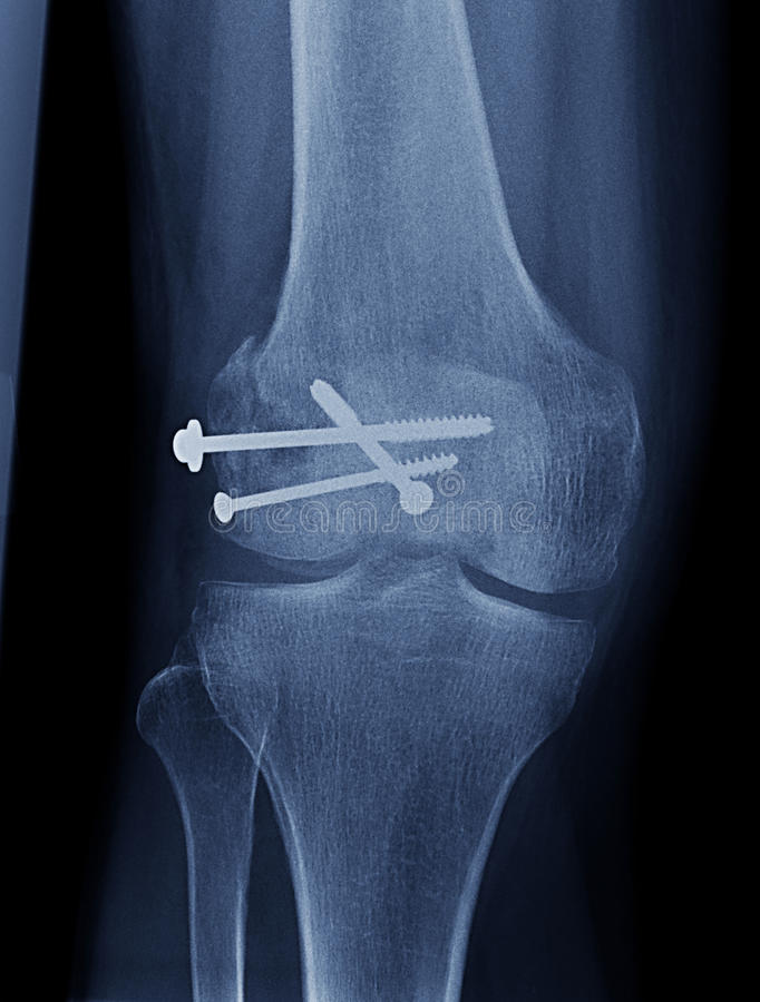 Knie-Röntgenstrahl vektor abbildung