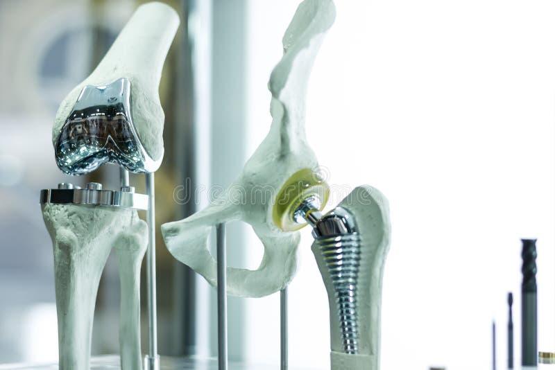 Knie und Hüftprothese stockfotos