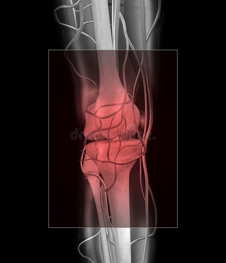 Knie-und Muskel-Schmerz stock abbildung. Illustration von strahl ...