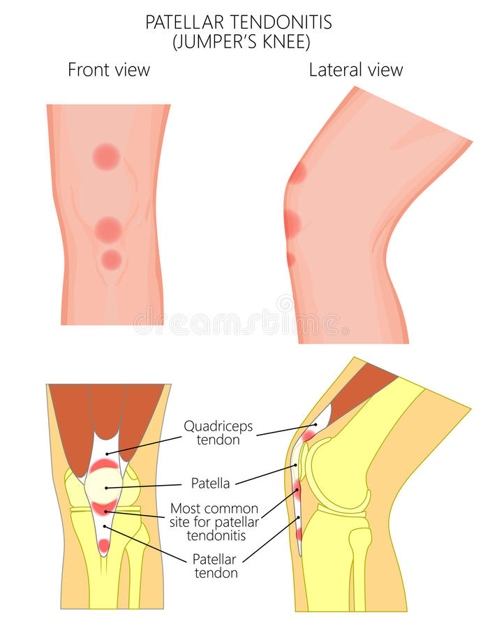 Kniegelenk problem_Patellar Tendonitis oder Pulloverknie Front und Seitenansichten vektor abbildung