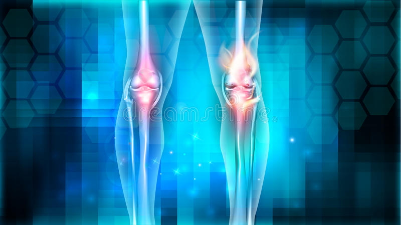 Kniegelenkprobleme stock abbildung