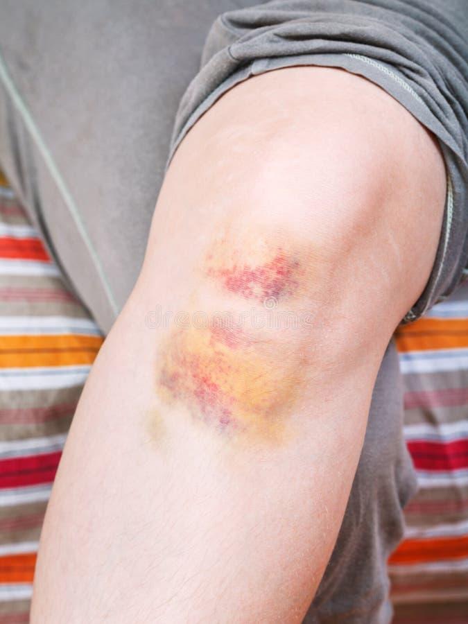 Knieverwonding - kneuzing op been royalty-vrije stock afbeelding