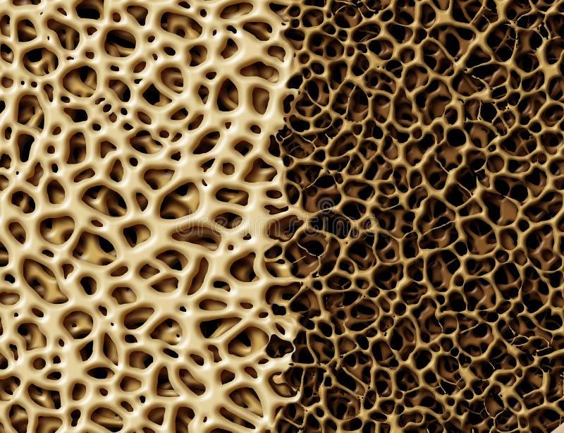 Knochen mit Osteoperosis lizenzfreie abbildung