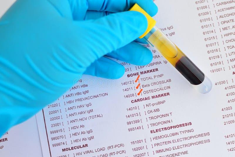 Knochenmarkierungstest stockbild