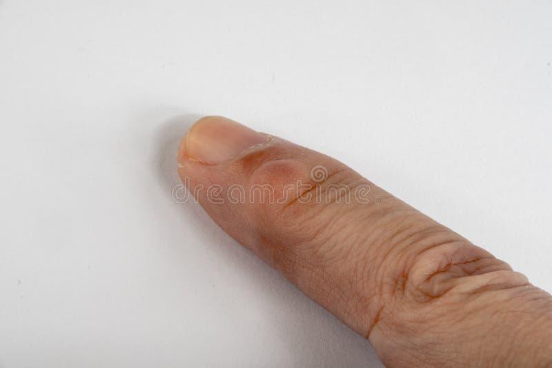 Knotenpunkt-Zyste auf Finger lizenzfreie stockfotografie