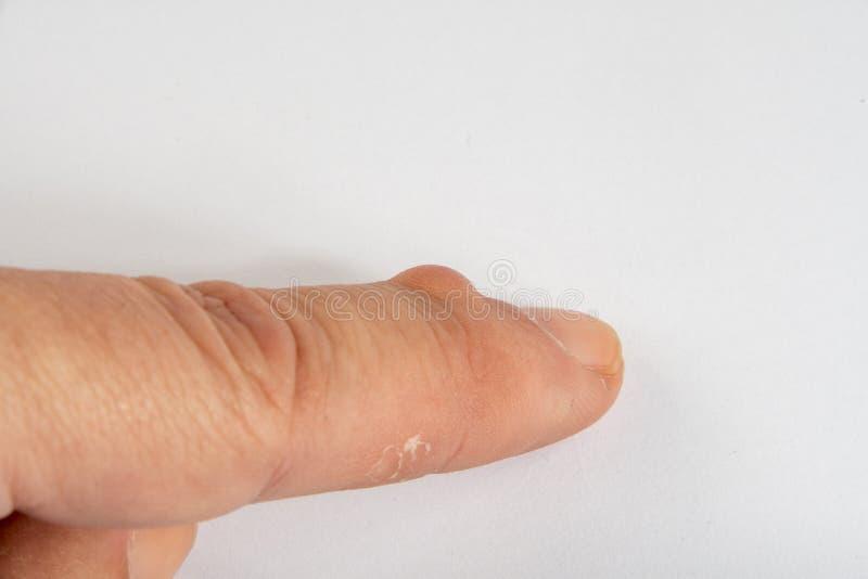 Knotenpunkt-Zyste auf Finger lizenzfreies stockbild
