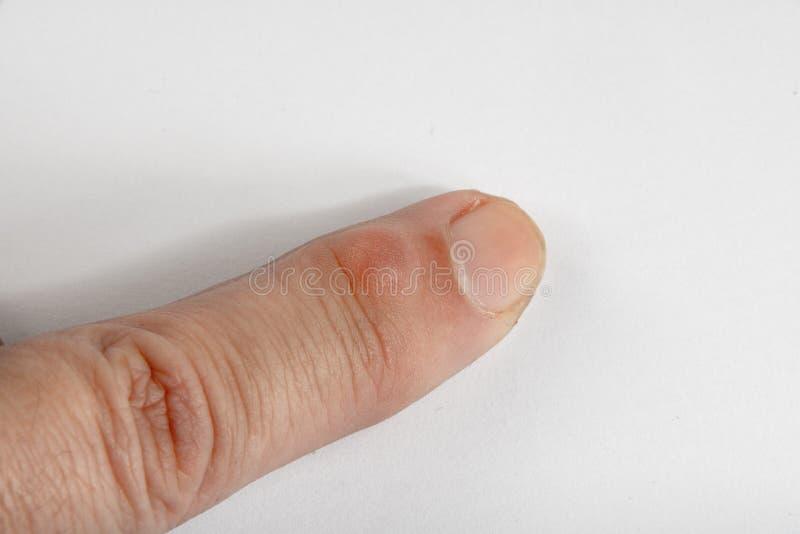Knotenpunkt-Zyste auf Finger stockfoto