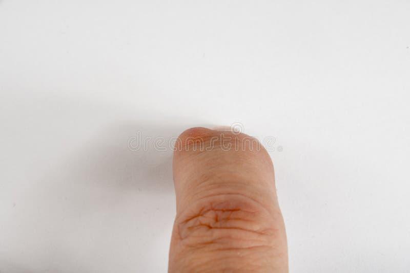 Knotenpunkt-Zysten auf Finger lizenzfreies stockfoto