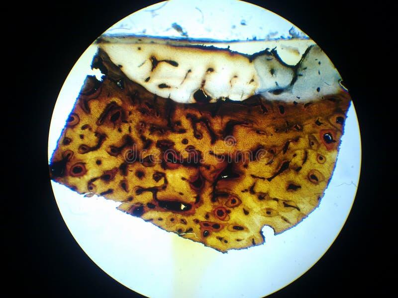 kości komórki osteocyte osteocytes zdjęcie stock