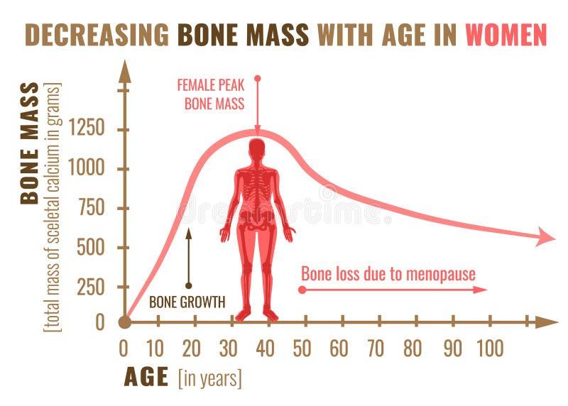 Kości masowy ubywanie royalty ilustracja