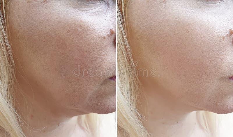 Kobiet zmarszczeń terapii kosmetologii odmładzania dojrzały pacjent przed i po traktowaniem obraz royalty free