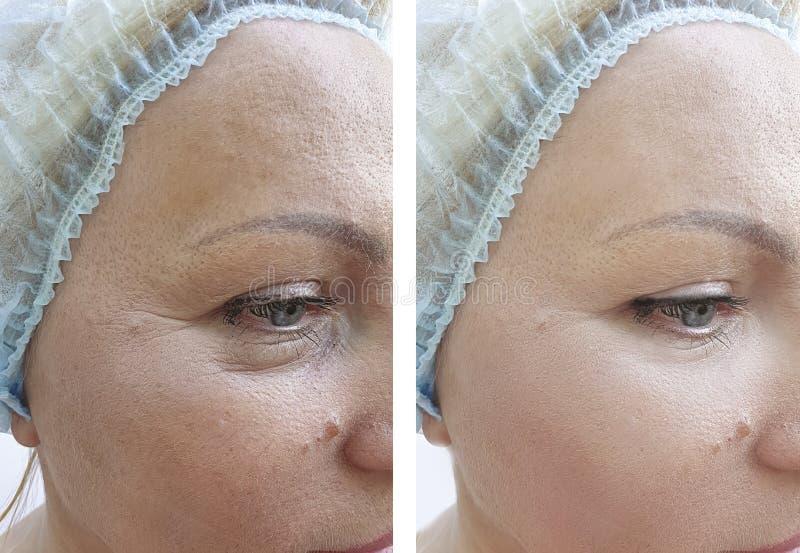 Kobiet zmarszczeń terapii kosmetologii odmładzania dojrzały podnośny pacjent przed i po traktowaniem zdjęcie royalty free