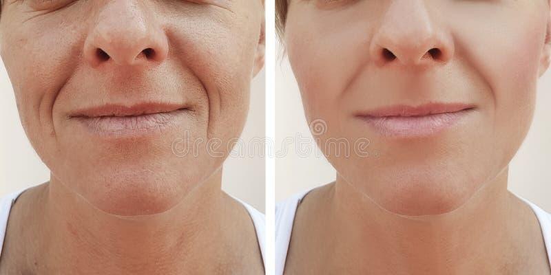Kobiet zmarszczeń twarz przed i po traktowanie kosmetyka procedurami obrazy royalty free