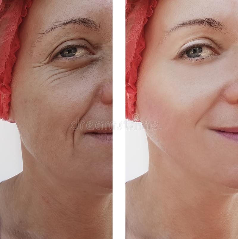 Kobiet zmarszczeń twarzy usunięcie przed i po traktowaniami zdjęcie royalty free