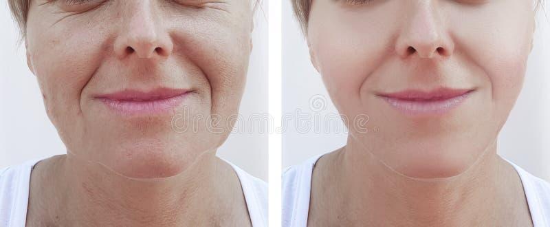 Kobiet zmarszczeń twarzy usunięcie przed i po traktowanie kosmetologią obraz royalty free