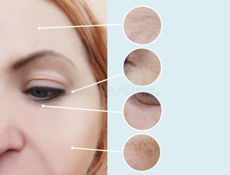 Kobiet zmarszczenia przed i po beautician procedurami fotografia stock